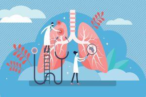 Lung cancer spread concept