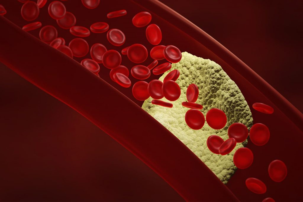 History of chelation therapy